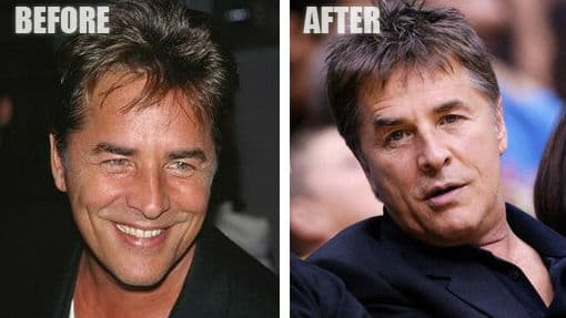 Chad Kroeger Before And After Plastic Surgery 1