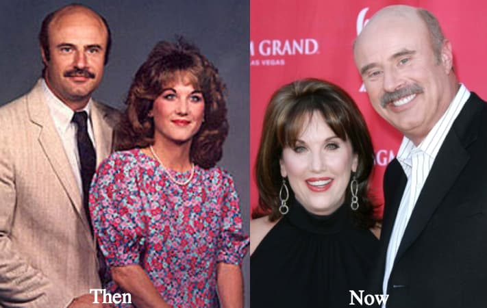 Dr Phil Eyes Before And After Plastic Surgery 1