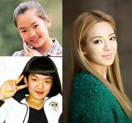 Hyoyeon Snsd Before And After Plastic Surgery 1