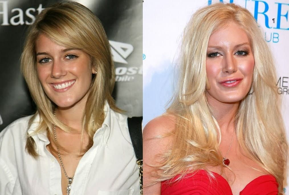 Heidi Montag Plastic Surgery Before And After 1
