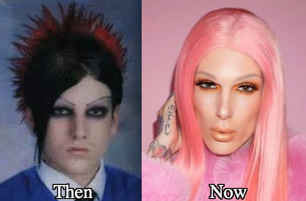 Jeffrey Star Before And After Plastic Surgery 1
