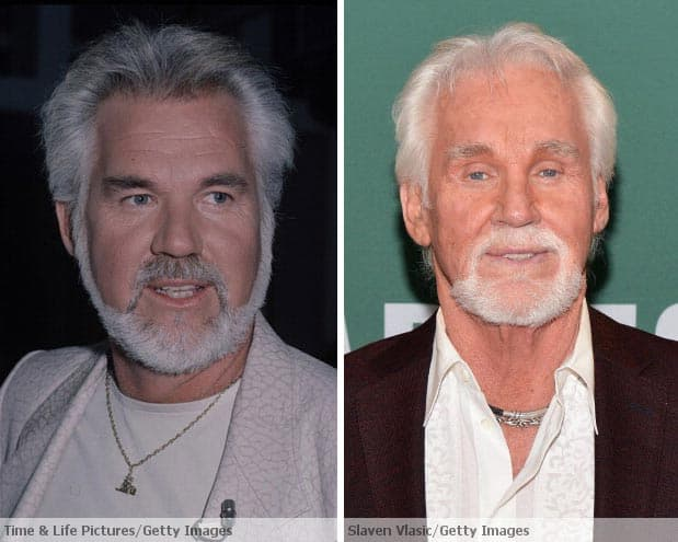 Kenny Rogers Plastic Surgery Before And After 1