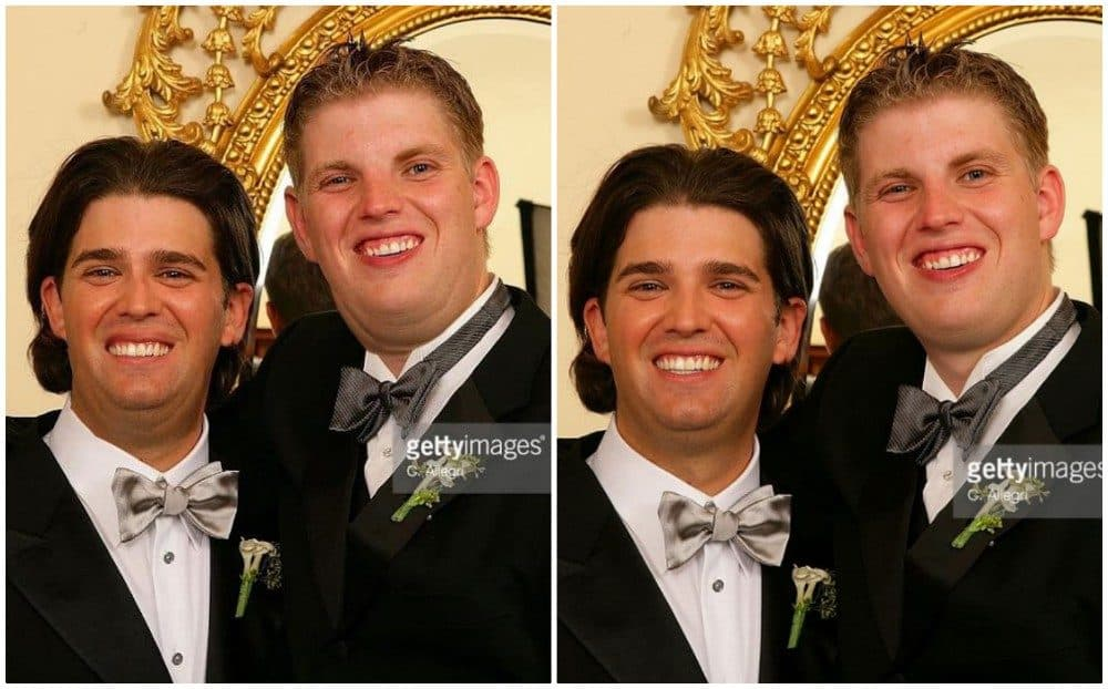 Picture Of Trumps Sons Before Plastic Surgery 1