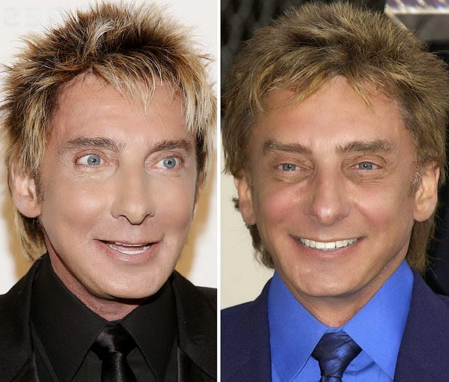 Plastic Surgery Before And After Examples Age 1