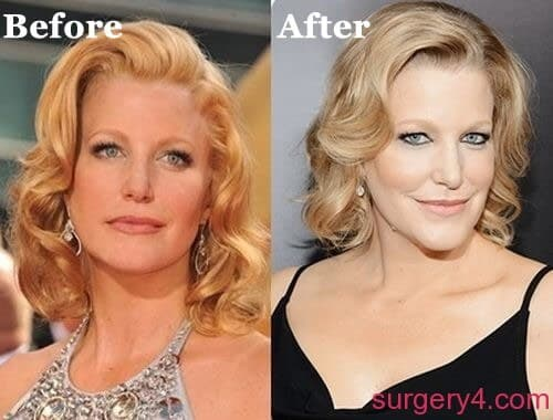 Skyler White Before And After Plastic Surgery 1