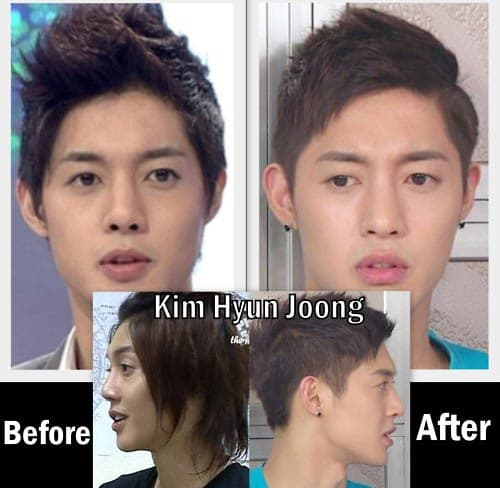 Song Yoon Ah Before And After Plastic Surgery 1