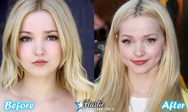 Cameron Dove Before And After Plastic Surgery 1
