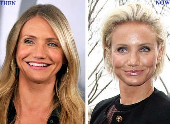 Cameron Diaz Plastic Surgery Before And After 1