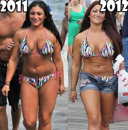 Deena Plastic Surgery Before And After Photos 1