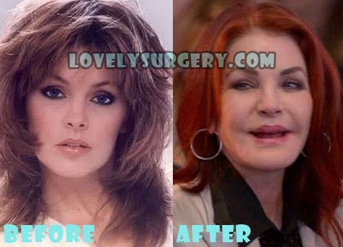 Elvis Plastic Surgery Before And After Photos 1
