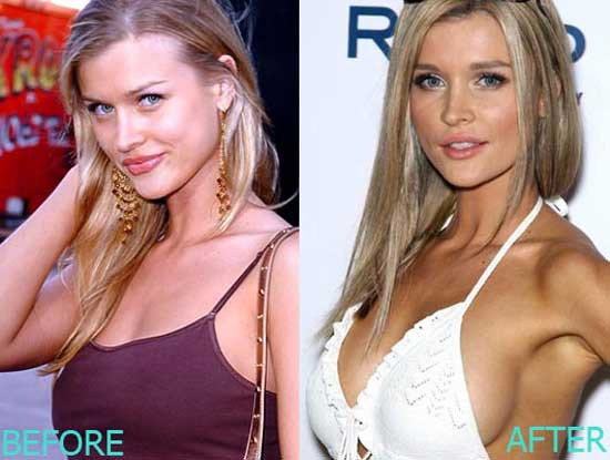 Emily Maynard Before Plastic Surgery Pictures 1
