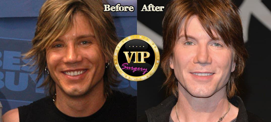 John Rzeznik Plastic Surgery Before And After 1