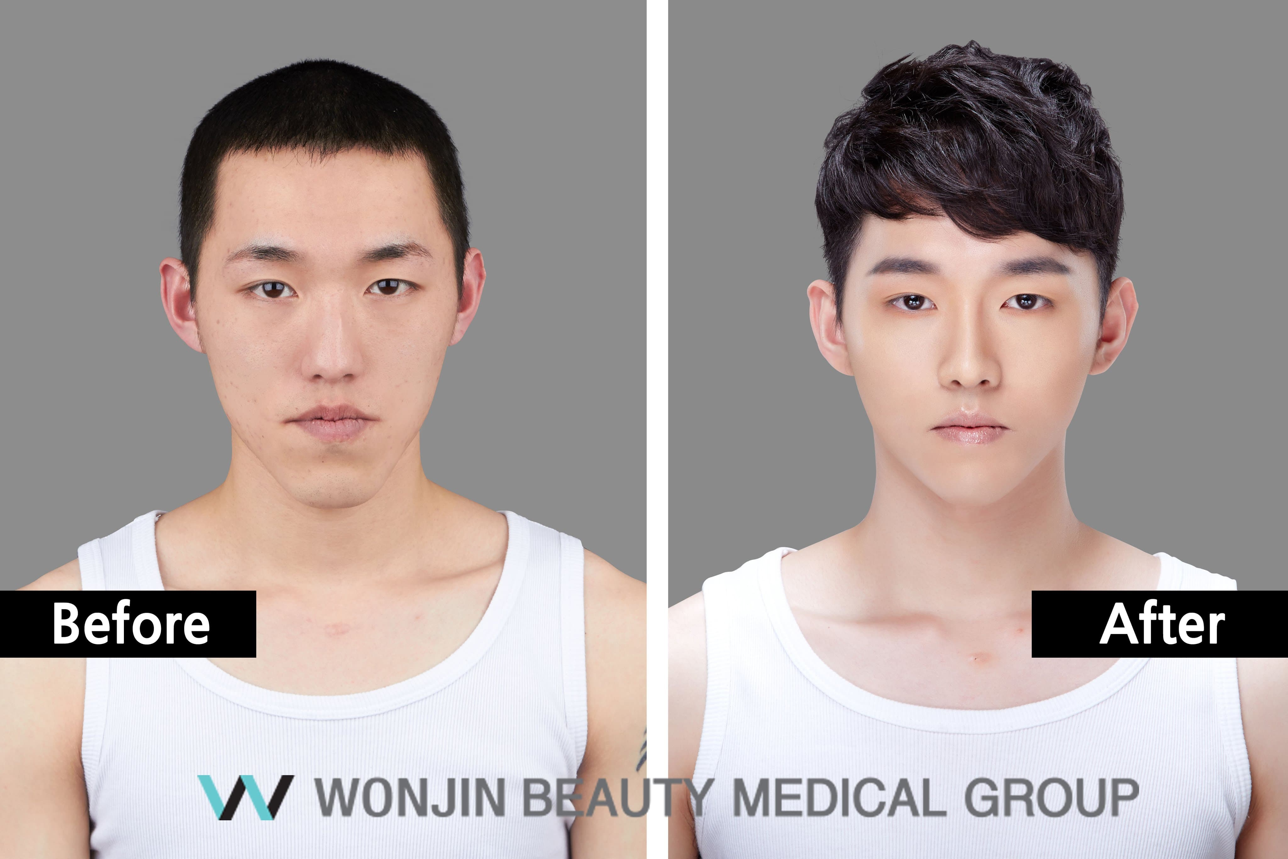 Korean Male Before And After Plastic Surgery 1