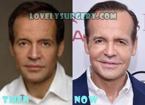 Louis Licari Before And After Plastic Surgery 1