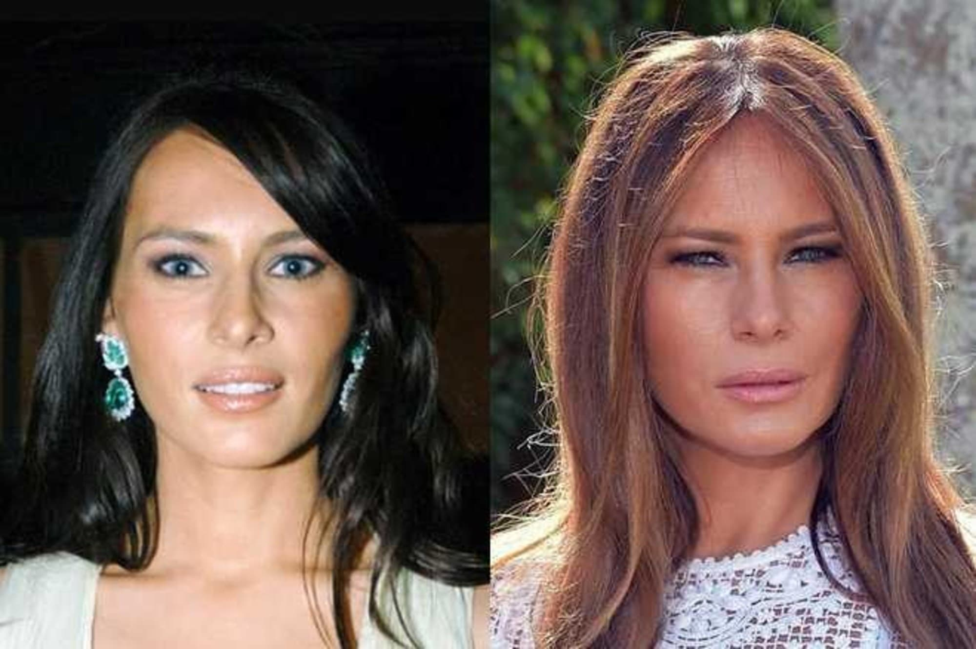 Michelle Obama Plastic Surgery Before And After photo - 1