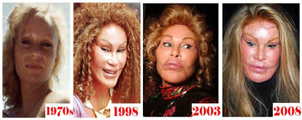 Cat Lady Plastic Surgery Images Before And After photo - 1