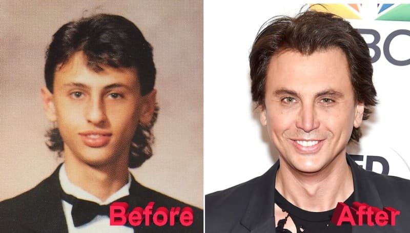 Jonathan Cheban Plastic Surgery Before And After photo - 1