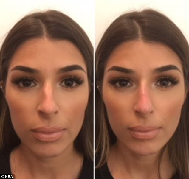 Korean Plastic Surgery Nose Job Before And After photo - 1