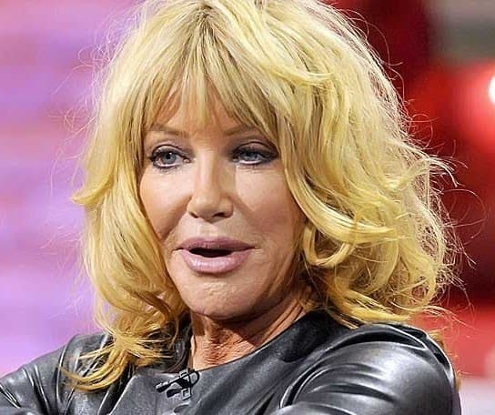 Suzanne Sommers Before And After Plastic Surgery photo - 1