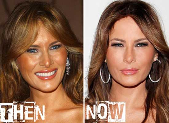 Melania Trump Before Plastic Surgery And After 1