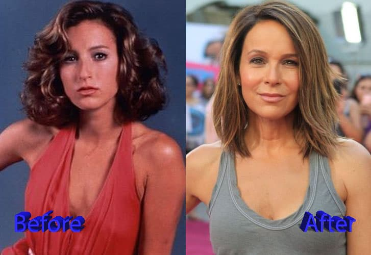 Jennifer Grey Before And After Plastic Surgery 1