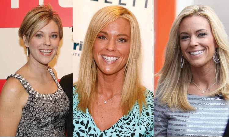 Kate Gosselin Before And After Plastic Surgery 1