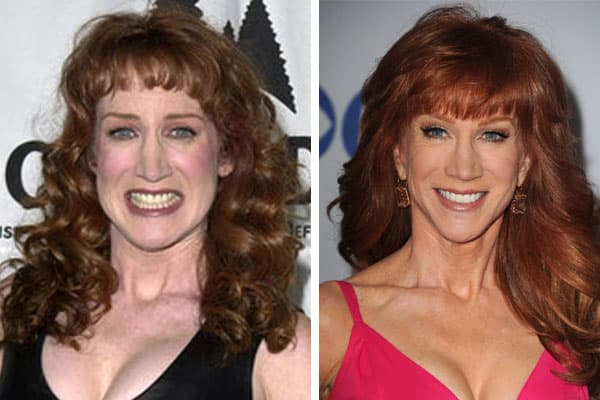 Kathy Griffin Before And After Plastic Surgery 1