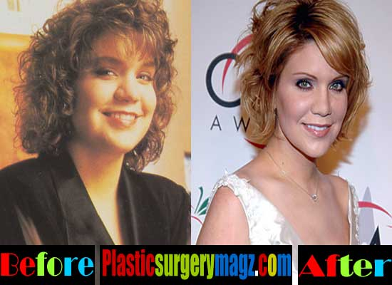 Alison Krauss Plastic Surgery Before And After 1