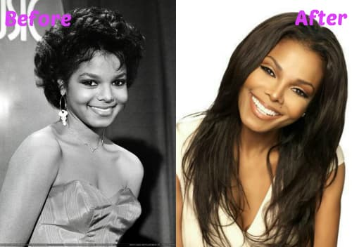 Janet Jackson Before And After Plastic Surgery 1