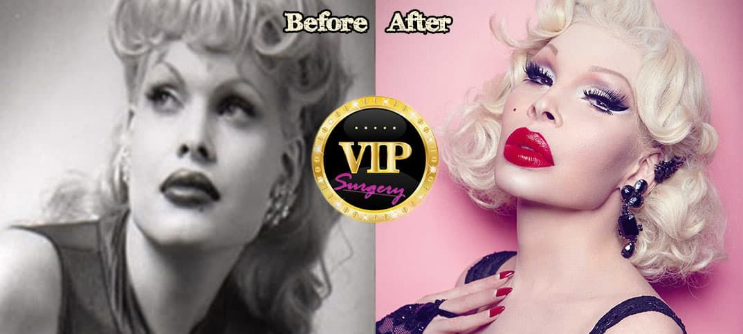 Korean Singer Before And After Plastic Surgery 1