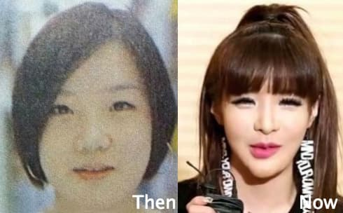 Park Jung Min Plastic Surgery Before And After 1