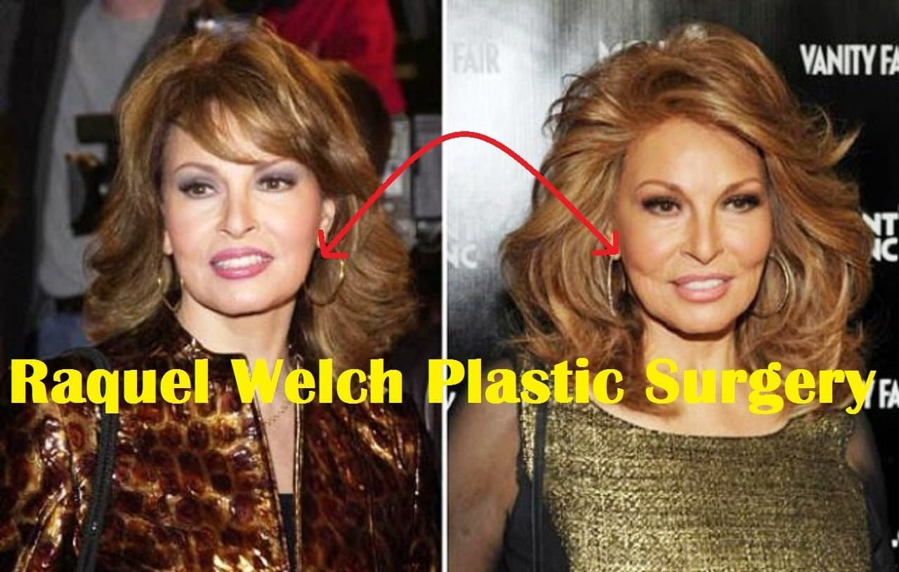 Raquel Welch Plastic Surgery Before And After 1