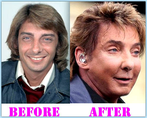 Barry Manilow Plastic Surgery Before And After 1
