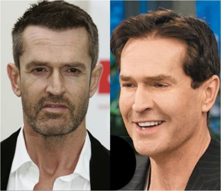 Famous Actors Before And After Plastic Surgery 1