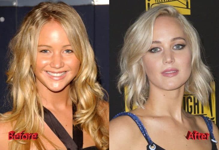 Jennifer Lawrence Plastic Surgery Before After 1