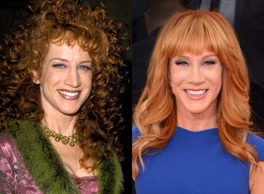 Kathy Griffin Before Plastic Surgery And After 1