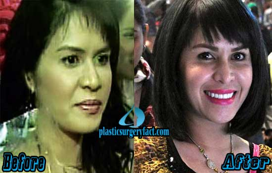 Pacquiao Wife Before And After Plastic Surgery 1