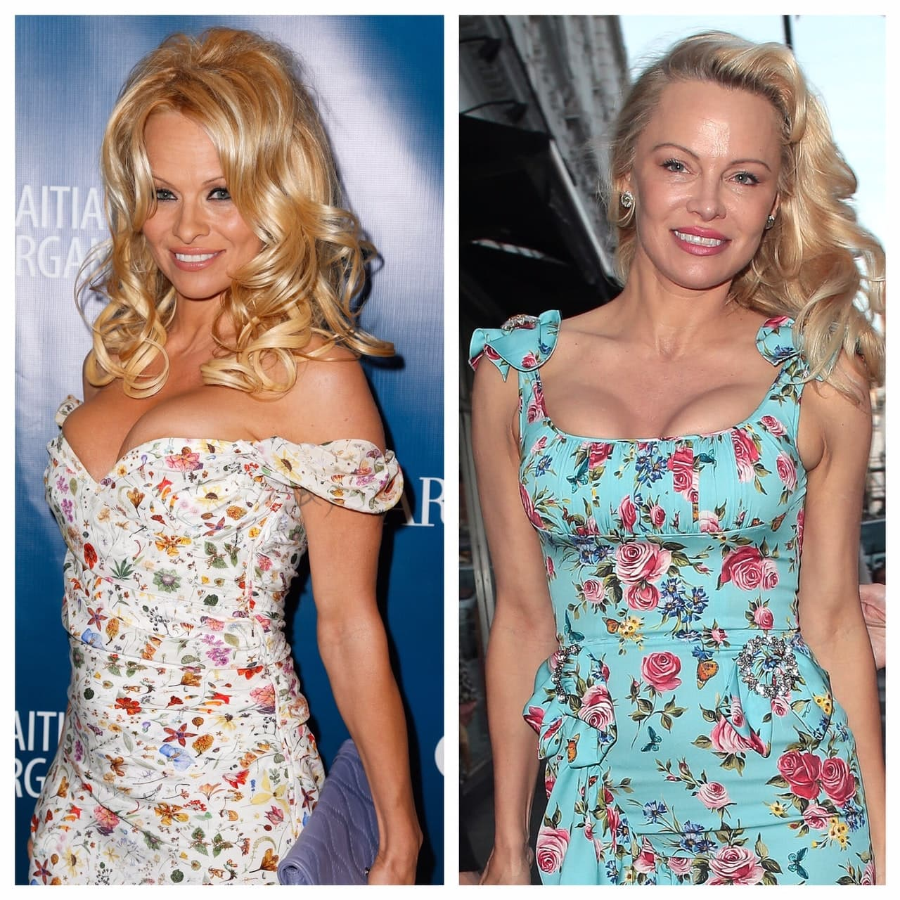 Pam Anderson Before And After Plastic Surgery 1