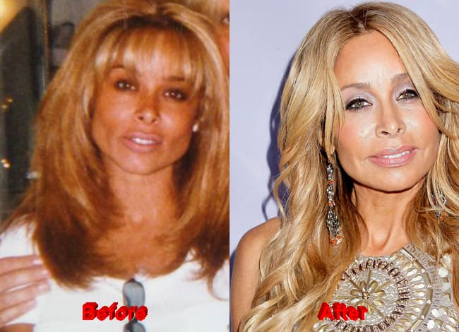 Reality Stars Before And After Plastic Surgery 1