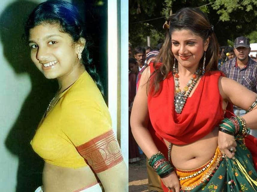 Manju Warrier Before And After Plastic Surgery 1