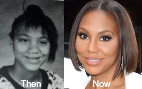 Norwood Young Plastic Surgery Before And After 1