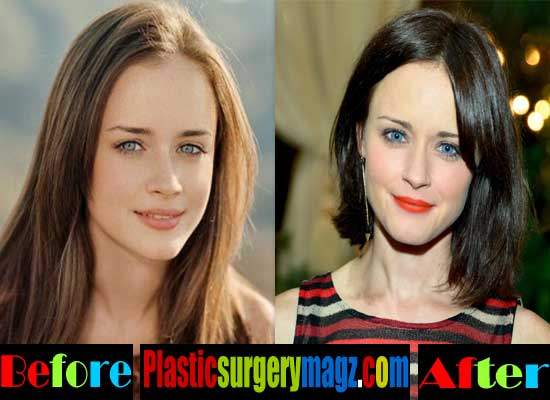 Alexis Bledel Plastic Surgery Before And After 1