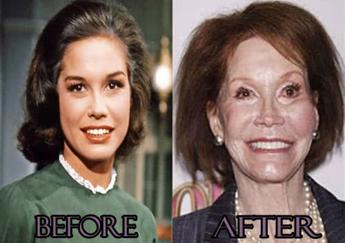 Barry Manilow Before And After Plastic Surgery 1