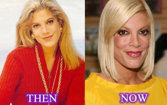 Before And After Plastic Surgery Tori Spelling 1