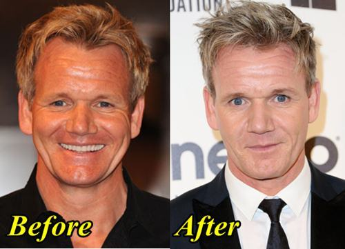 Gordan Ramsay After Plastic Surgery And Before 1