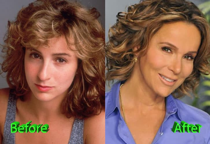 Jennifer Grey Plastic Surgery Before And After 1