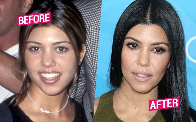 Kim Kardashian Before Plastic Surgery And Fame 1