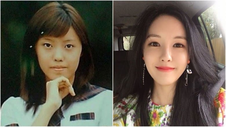 Korean Celebs Before And After Plastic Surgery 1