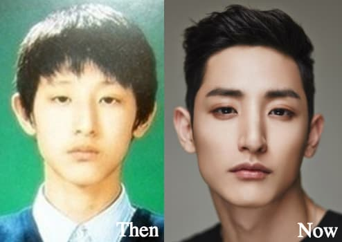 Lee Jong Hyun Plastic Surgery Before And After 1