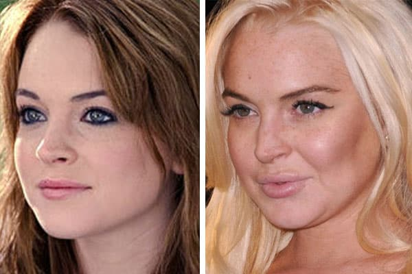 Lindsay Lohan Plastic Surgery Before And After 1